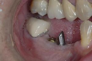 Bobby-Implant-Bridge-Back-X1-419