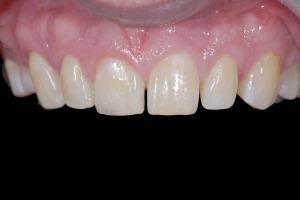 Brian Crown Lengthening X121 Root Filling After 6727