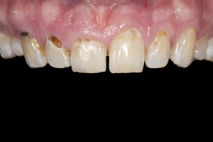 Brian Crown Lengthening X121 Root Filling  Before 3135