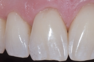 Brian Gum Graft XCTG After1971 2