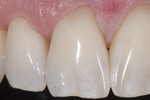 Brian Gum Graft XCTG  Before 4064 2