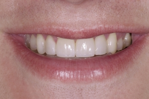 Brian2 Gum Graft S Post 8120