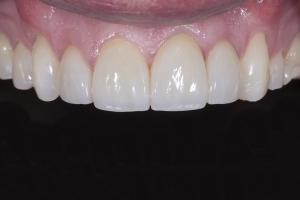 Brian2 Gum Graft X121 After 8128