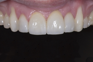 Brian2 Gum Graft X121  Before 5419