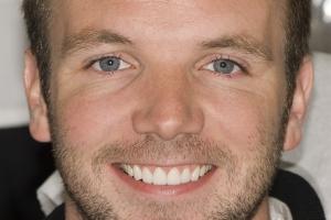 Brian Veneers & Gum Lift F2 After copy