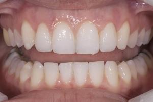 Briana Gummy Smile R post 020