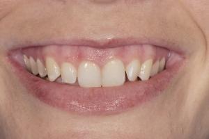 Briana Gummy Smile S B4 001