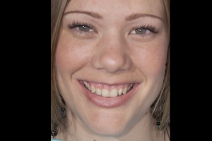 BrIana Gummy Smile F B4 009