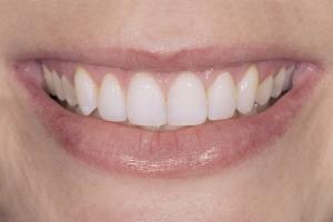 Briana Gummy Smile S Post 35_1 (1)