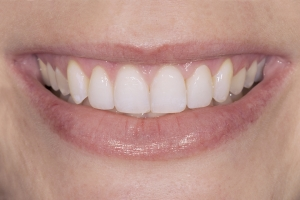 Briana Veneers & Gum Lift S  After 35