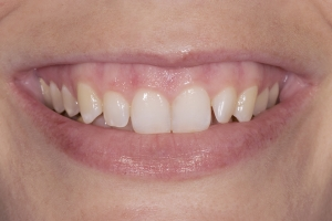 Briana Veneers & Gum Lift S  Before 001
