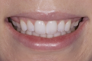 Brook S Diastema After 001