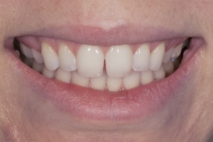 Brook S Diastema  Before 061