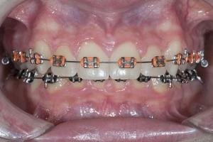 Camden Braces x 2012 5-16 X Rickinator_DSC9525 5168