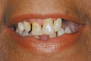 Carol Implant Denture S B4