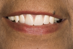 Carol Implant Denture S Post Tif