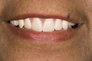 Carol Implant Denture S Post Tif