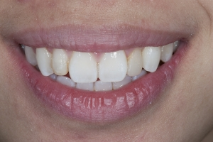 Carol Veneers As Retainers S B4 0101