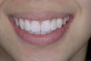 Carol Veneers As Retainers S Post 1513