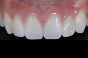 Carol Laser Gum Lift X121U Post 1546