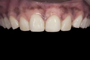 Celeste Teeth Whitening X121 B4 0205