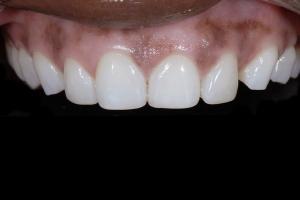 Celeste Teeth Whitening X121 post Whitening_DSC6381