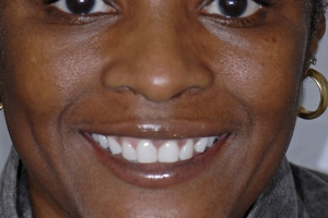 Celeste Teeth Whitening F Post Whitening_DSC6382 copy