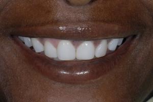 Celeste Teeth Whitening S After 6376