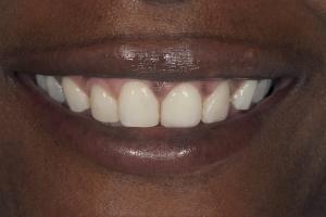 Celeste Teeth Whitening S  Before 0199