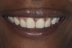 Celeste Laser Teeth Whitening S B4 0199