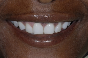 Celeste Laser Teeth Whitening S Post 6376