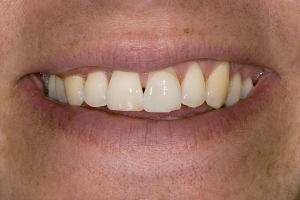 Chad Teeth Whitening S B4 2