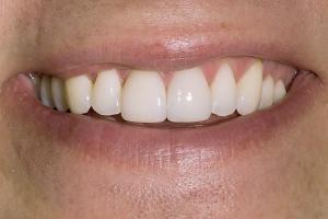 Chad Teeth Whitening S Post 10 03 06
