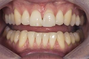 Chad Teeth Whitening R B4