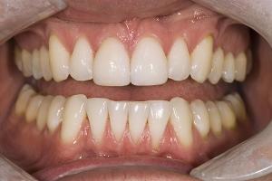 Chad Teeth Whitening R Post 10 03 06