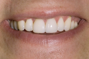 Chad Teeth Whitening S Post 10 03 06
