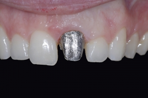 Chelli Z6 Grey Tooth Crown Before 7312
