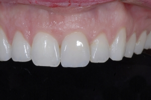 Chelli Z9d Grey Tooth Crown After 9065