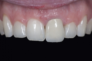 Chelli Crown Lengthening x121U B4 7291