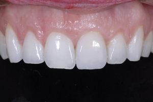 Chelli Crown Lengthening x121U Post 9066