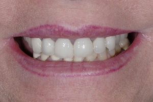Cheryl S Implant Bridge  Before 9443