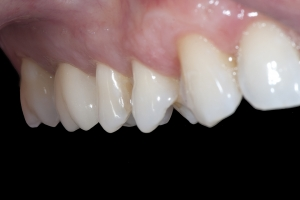 Chris X121 Crowns Back Teeth After 0045