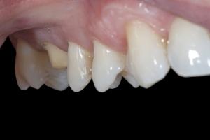 Chris X121 Crowns Back Teeth  Before 0039