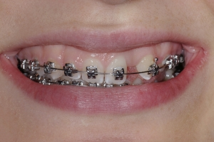 Christina Implant Crown S  Before 0020