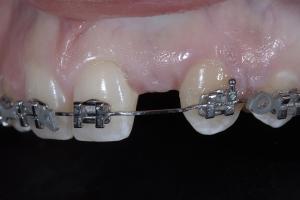 Christina Implant Crown X1 4698