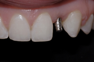 Christina Implant Crown X2 0999