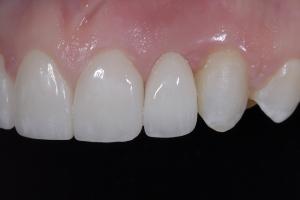 Christina Implant Crown X3 5616