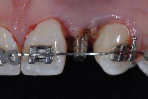 Christina2 Implant Temporary Z4 4708bc