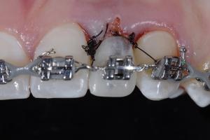 Christina2 Implant Temporary Z5 4710
