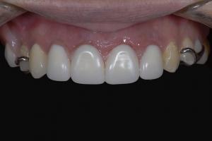 Christina Implant Temporary Partial 3 5202